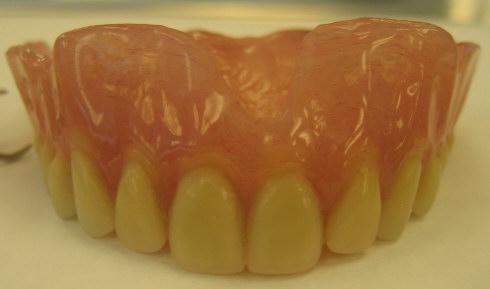Denture2